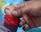 இரட்டையர்களில் தந்தை யார்? : விநோதத் தீர்ப்பினால் குழந்தைக்கு கிடைத்த அதிஷ்டம்