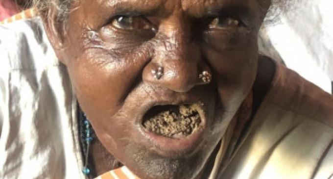 மரியசெல்வம்: 40 ஆண்டுகளாக மண் சாப்பிட்டு வாழ்ந்து வரும் மூதாட்டி