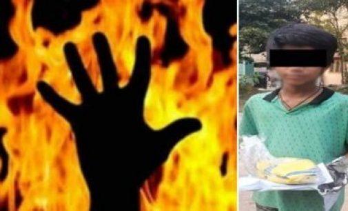 பாடம் சரியாக படிக்கவில்லை என கூறி 11 வயது மகனை தீ வைத்து கொளுத்திய கொடூர தந்தை